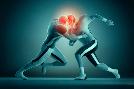 Concussions in American Football