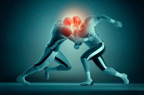 Conmociones cerebrales en el fútbol americano